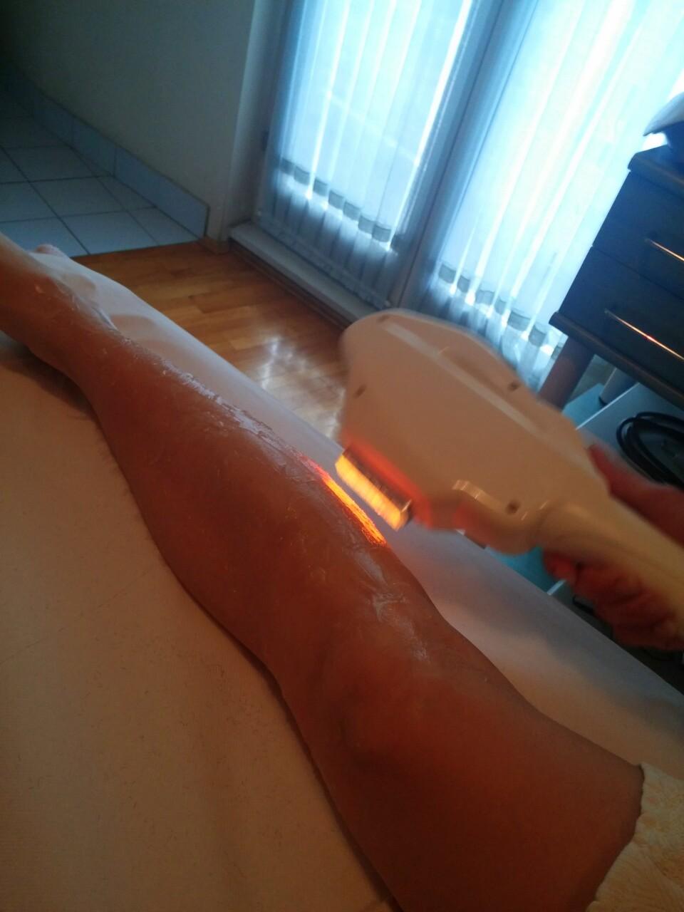 Zimski tretmani - pomlađivanje, ožiljci, akne, dlačice